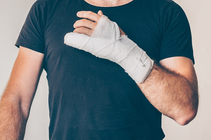 Man with an industrial hand injury
