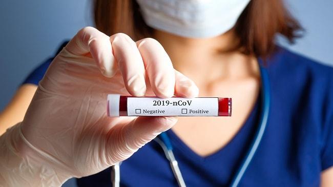 coronavirus 2a-min